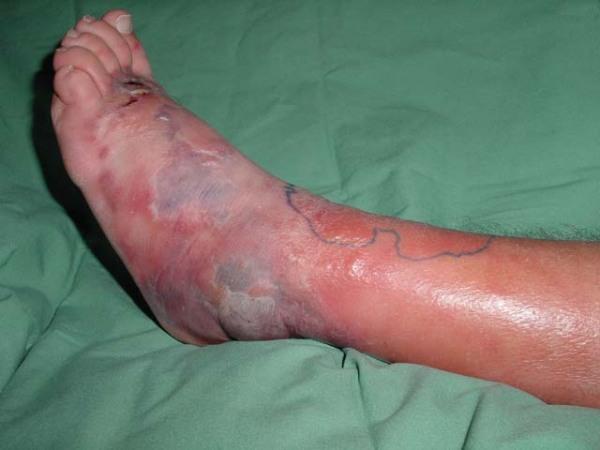 Antibiotics Cellulitis